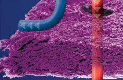 Gruba membrana oselektywnej przepuszczalnosci