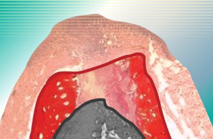 Gąbka kolagenowa doochrony zebodołów