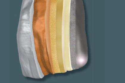 visio.lign – implantoprotetyka zeliminacją dysfunkcji stawu skroniowo-żuchwowego